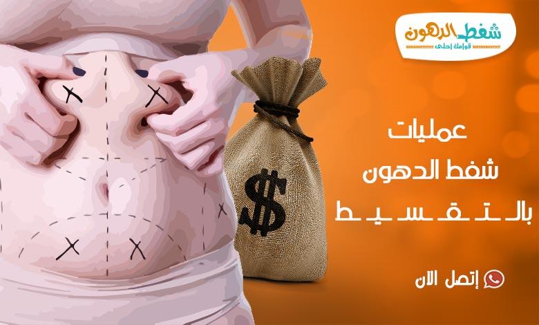 3 طرق لعمليات شفط الدهون بالتقسيط في مصر تعرف عليهم الان