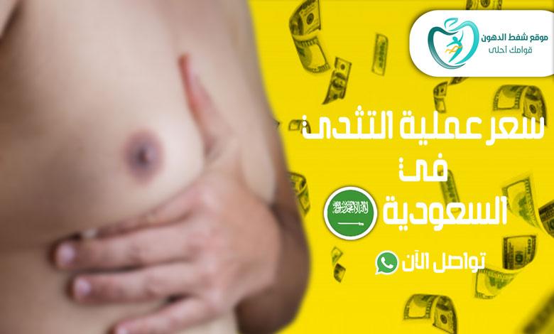 سعر عملية التثدي في السعودية