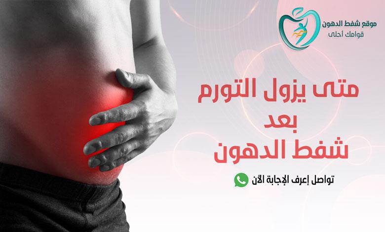 متى يزول التورم بعد عملية شفط الدهون