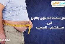 كم تكلف عملية شفط الدهون في مستشفى الحبيب