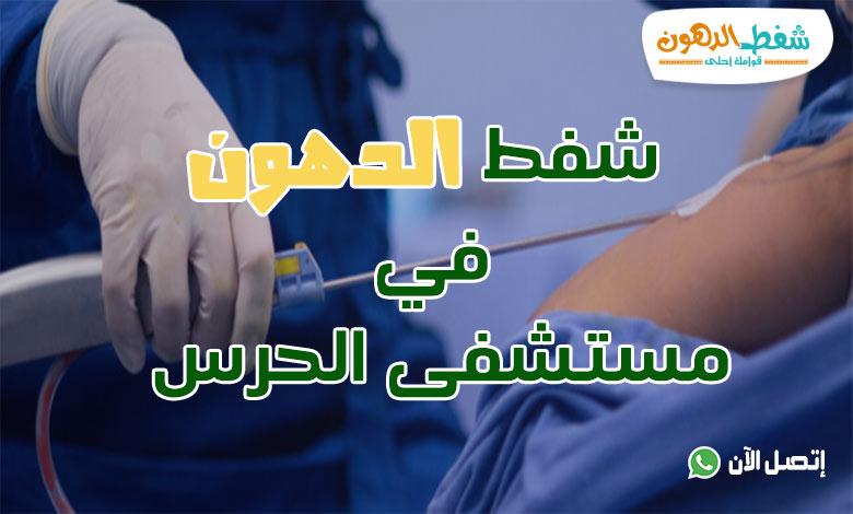 شفط الدهون في مستشفى الحرس