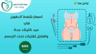 اسعار شفط الدهون في عيد كلينك
