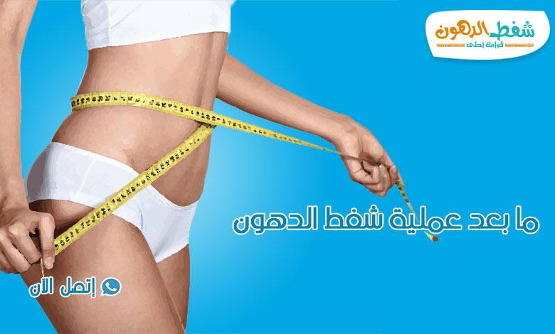 ما بعد عملية شفط الدهون | ترهل الجلد بعد عملية شفط الدهون
