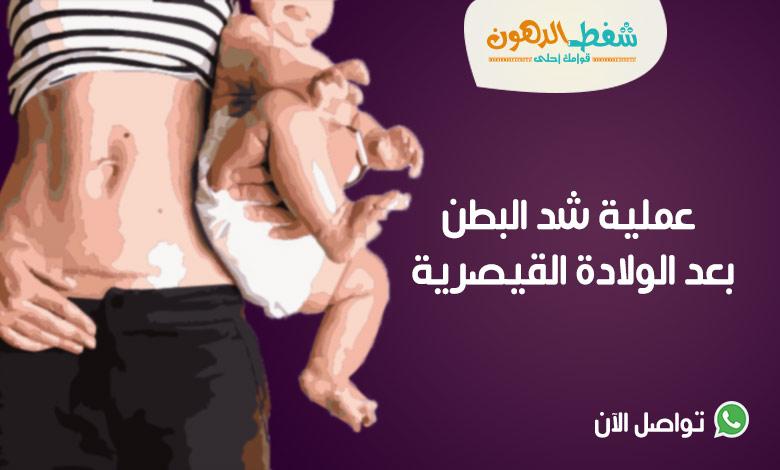عملية شد البطن بعد الولادة