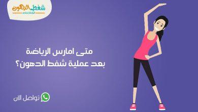 الرياضة بعد عملية شفط الدهون