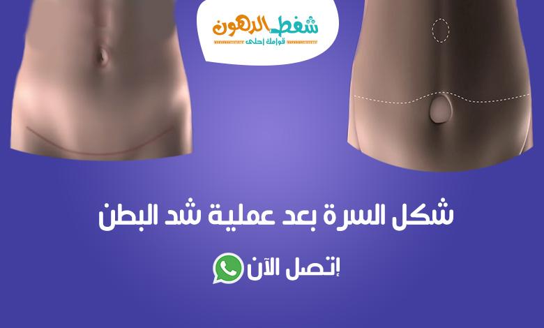 شكل والتهاب السرة بعد عملية شد البطن