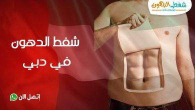 تعرف على التكلفة وتجربتي مع شفط الدهون في دبي مع أفضل دكتور