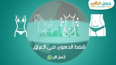 تكلفة عملية شفط الدهون في العراق بالفيزر والليزر مع أفضل دكتور