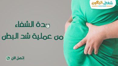 مدة الشفاء من عملية شد البطن