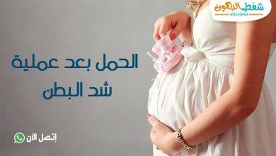 تجربتي مع الحمل بعد عملية شد البطن