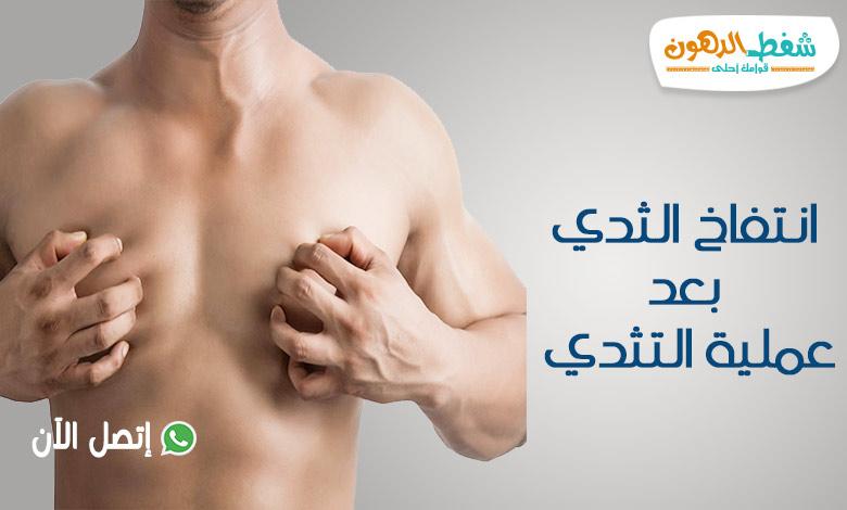 انتفاخ الثدي بعد عملية التثدي أسبابه وأنواعه ومتى يختفي؟